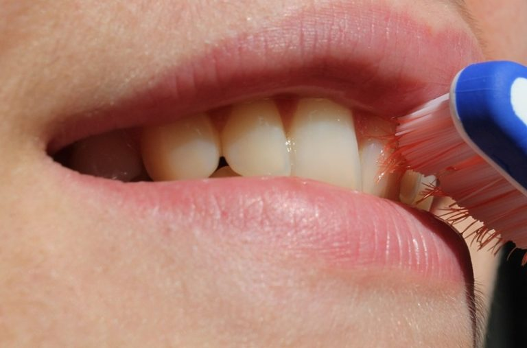 How To Deal With Tartar Build-Up On Your Teeth