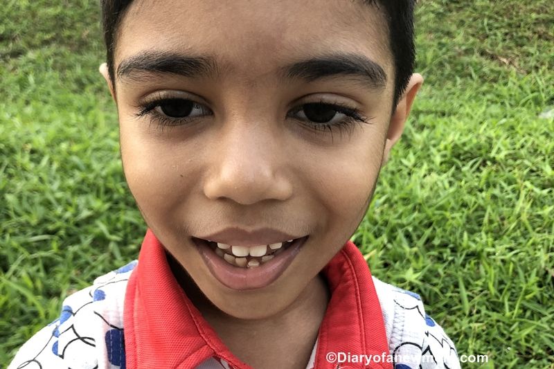 My Kid Has a Loose Tooth