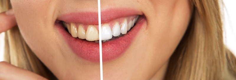 get rid of brown stains on teeth